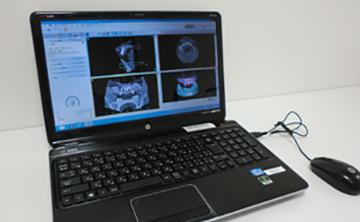 シンプラント3D解析の機械