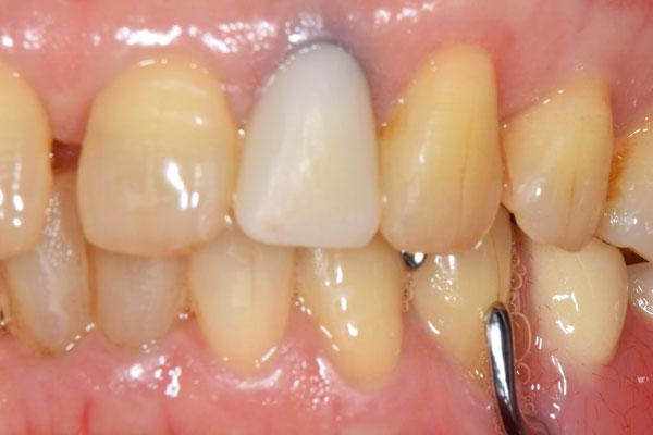 治療前:保険適応の前歯のかぶせ物をオールセラミック スタンダードにて修復
