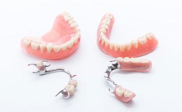 治療方法2:入れ歯