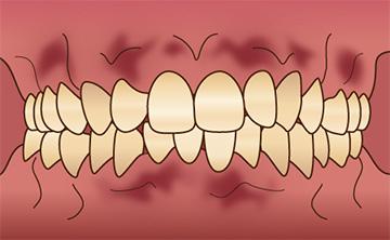 歯ぐきの色を綺麗にしたい