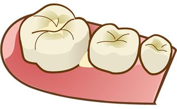 歯と歯の間に物が挟まっている