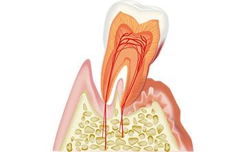 歯周病が進行している