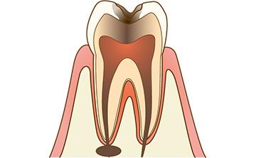 歯の根の先に膿がたまっている
