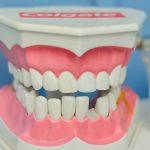 歯茎の黒ずみを解消する「歯茎ピーリング」って知ってる?