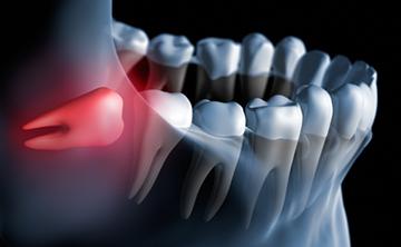 移植できる歯