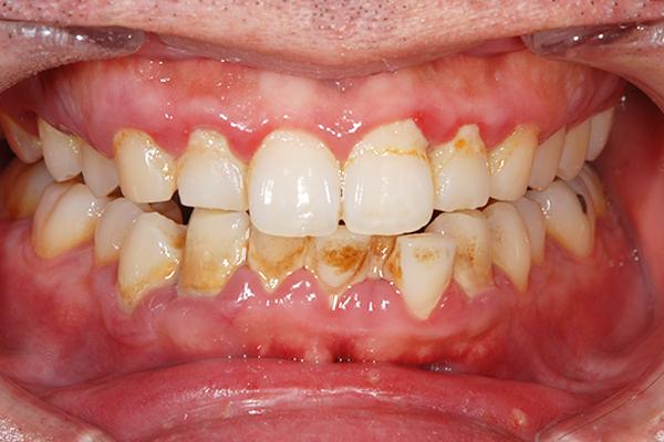 治療前: 初期〜中等度歯周病治療