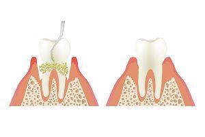 深部歯石の除去