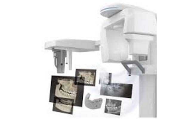 CTで歯の根