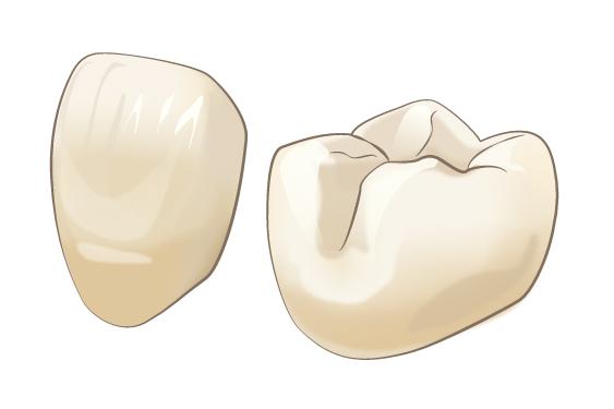 セラミック歯